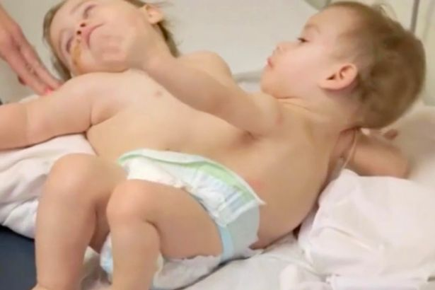 conjoined-twins-who-faced-each-other-separated-in-california-surgery